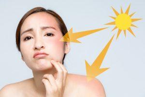 Những ngộ nhận về kem chống nắng, liệu bạn có mắc phải?