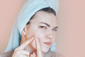 Chăm sóc da mùa hè bạn nhất định phải biết những bí quyết này để mụn không bùng phát